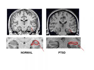 HIPPOCAMPAL VOLUME IN PTSD Measured with magnetic resonance imaging (MRI). There is a visible reduction in volume of the hippocampus (outlined in red) in a representative patient with PTSD relative to a normal individual (arrow).